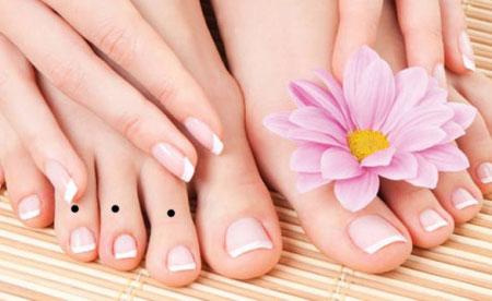 Nốt ruồi ở ngón chân mang ý nghĩa gì?